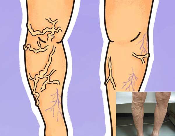 下肢静脈瘤の写真とイラスト