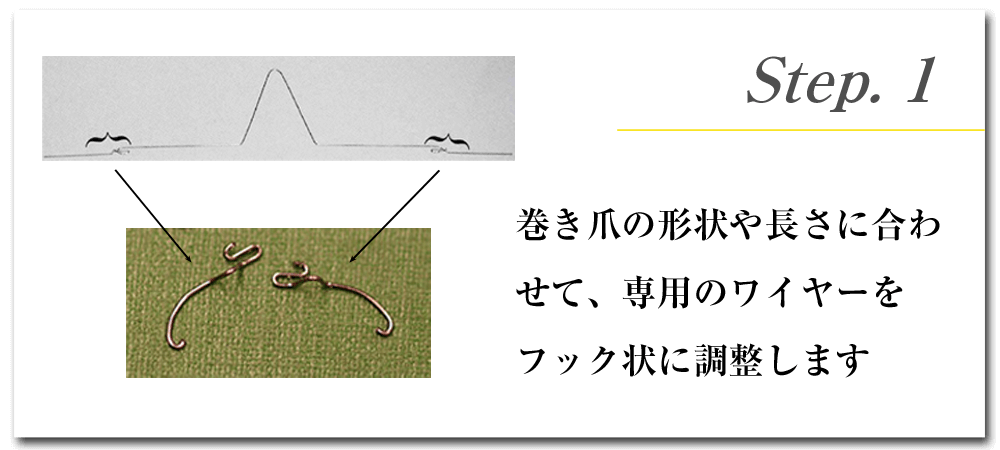 Step.1 巻き爪の形状や長さに合わせて、専用のワイヤーをフック状に調整します
