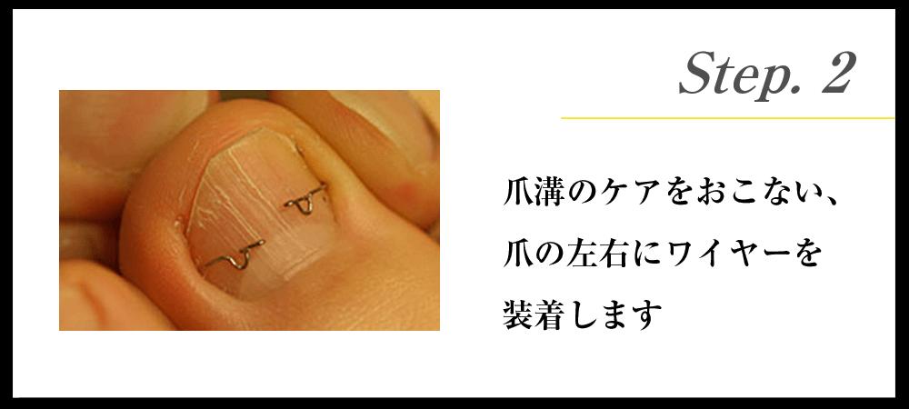 Step.2 爪溝のケアをおこない、爪の左右にワイヤーを装着します