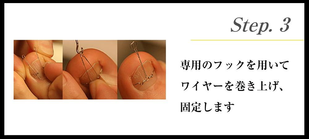 Step.3 専用のフックを用いてワイヤーを巻き上げ、固定します