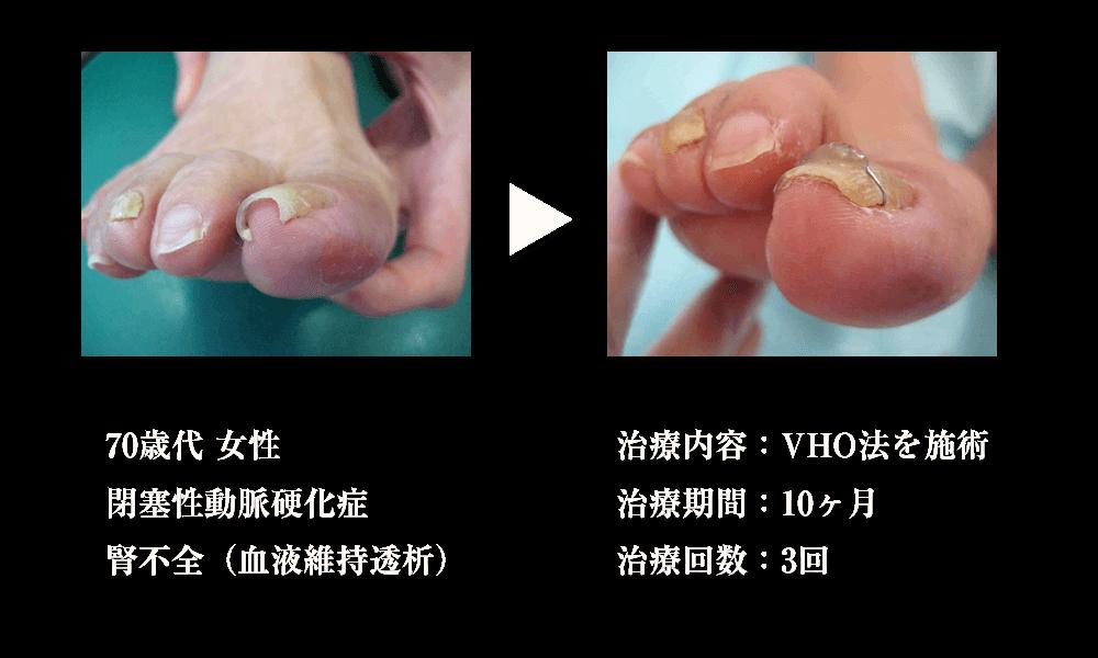 治療例1 対象者:70歳代 女性、症状:閉塞性動脈硬化症 腎不全(血液維持透析)、治療内容:VHO法を施術、治療期間:10ヶ月、治療回数:3回