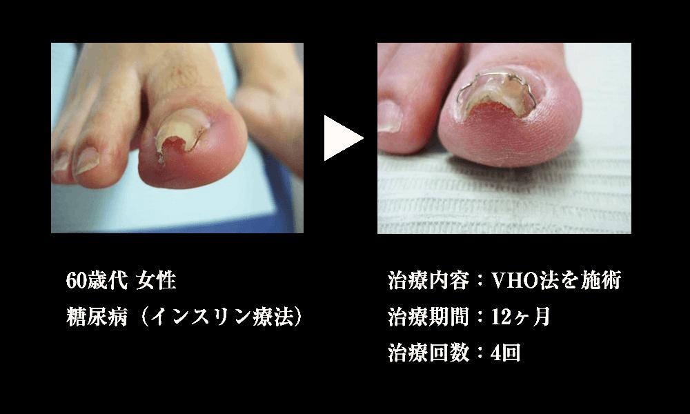 治療例2 対象者:60歳代 女性、症状:糖尿病(インスリン療法)、治療内容:VHO法を施術、治療期間:12ヶ月、治療回数:4回