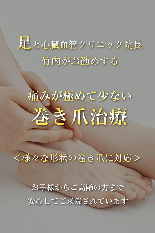 足と心臓血管クリニック院長 竹内がお勧めする 痛みが極めて少ない 巻き爪治療(様々な形状の巻き爪に対応。お子様からご高齢の方まで安心してご来院されています